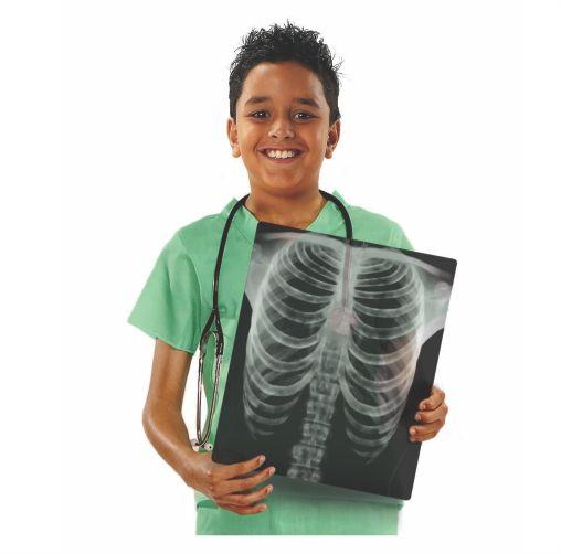 5911-Human-X-ray-boy