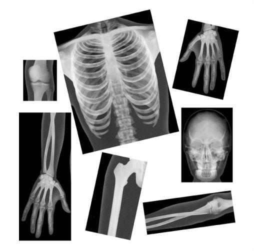 Radiographies Du Corps Humain Funique Boutique En